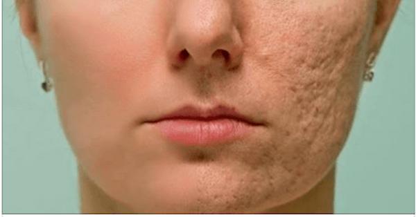 Комплекс Чистая кожа